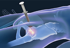 Stem Cell Therapy for Hip Injuries